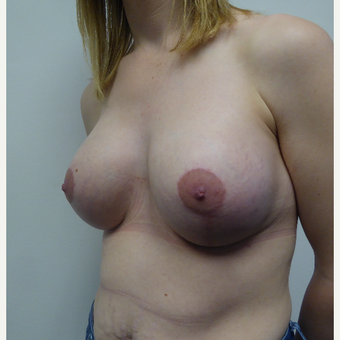 35-44 year old woman treated with Breast Lift after 3428166