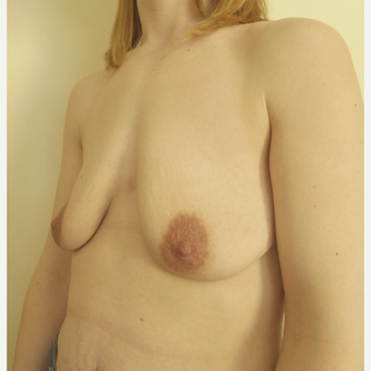 35-44 year old woman treated with Breast Lift before 3428166