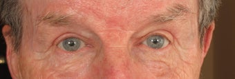 75 and up year old man treated with Eyelid Surgery