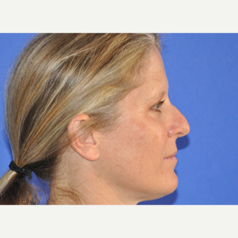 35-44 year old woman treated with Rhinoplasty before 3240110