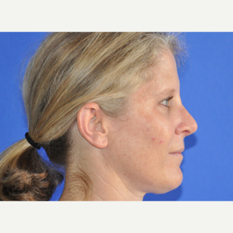 35-44 year old woman treated with Rhinoplasty after 3240110