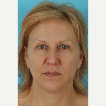 55-64 year old woman treated with Facelift before 3691411