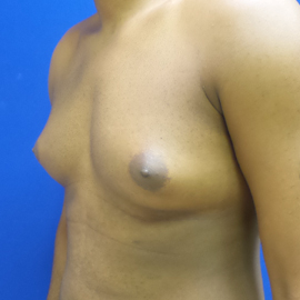 Male Breast Reduction before 3575525