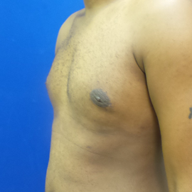Male Breast Reduction after 3575525
