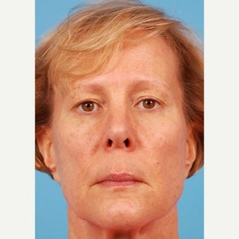 Liquid Facelift: 45-54 yr old female before 1606556