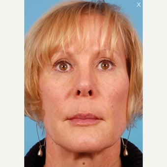 Liquid Facelift: 45-54 yr old female after 1606556