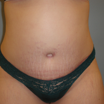 25-34 year old woman treated with Tummy Tuck after 3685574