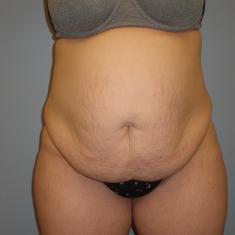 25-34 year old woman treated with Tummy Tuck before 3685574