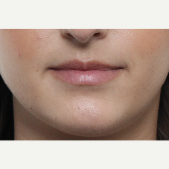 18-24 year old woman treated with Lip Augmentation before 3076190
