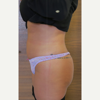 25-34 year old woman treated with Liposuction after 3499898