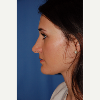 18-24 year old woman treated with Rhinoplasty before 3610164