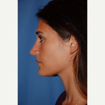 18-24 year old woman treated with Rhinoplasty after 3610164