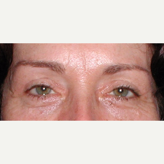 Surgical treatment with direct brow lift and blepharoplasty after 3042041