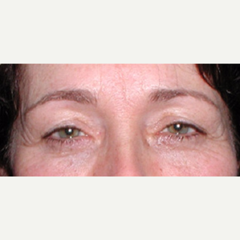 Surgical treatment with direct brow lift and blepharoplasty before 3042041