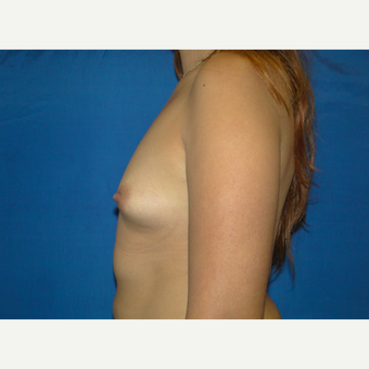 500 cc Silicone Breast Implants before 3850424