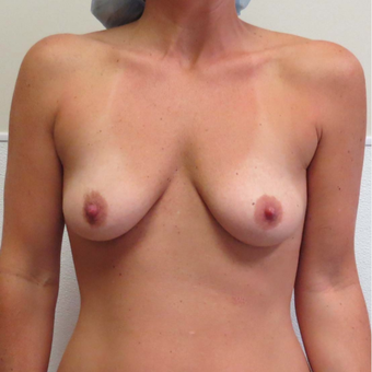 Breast Augmentation with Silicone Gel for this 35 Year Old Woman before 2985315