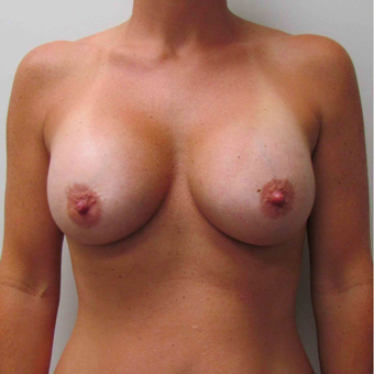 Breast Augmentation with Silicone Gel for this 35 Year Old Woman after 2985315
