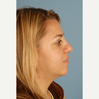 29 year old woman treated with Rhinoplasty after 3839762