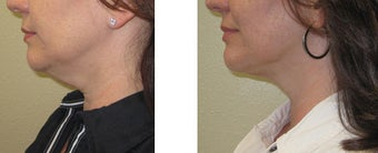 Chin liposuction/Liposculpture before 1007698