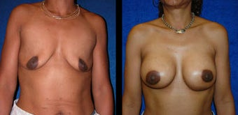 30 Year Old Woman - Breast Lift with Augmentation before 1094095