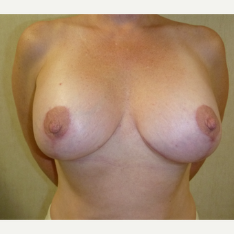 25-34 year old woman treated with Breast Augmentation after 3266436