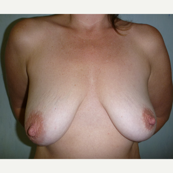 25-34 year old woman treated with Breast Augmentation before 3266436