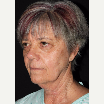 64 year old woman treated with Facelift before 3001003