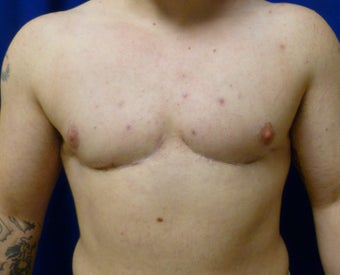 42 Year Old FTM Top Surgery after 1278971