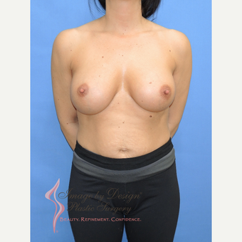 25-34 year old woman treated with Breast Implants after 3113005