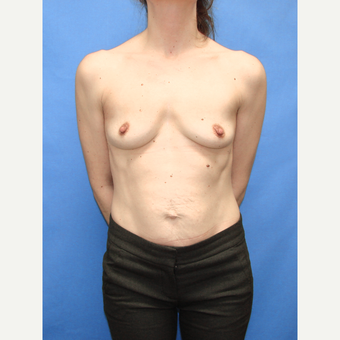 25-34 year old woman treated with Breast Implants before 3113005