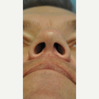 35-44 year old man treated with Nose Surgery before 3445901