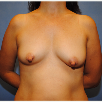 25-34 year old woman treated with Breast Lift with Implants before 3763253