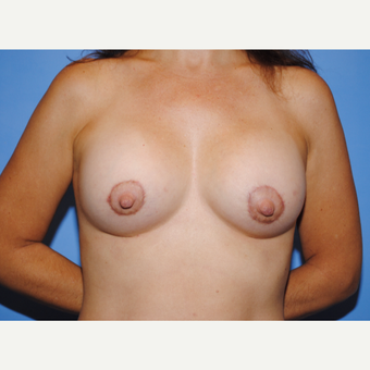 25-34 year old woman treated with Breast Lift with Implants after 3763253