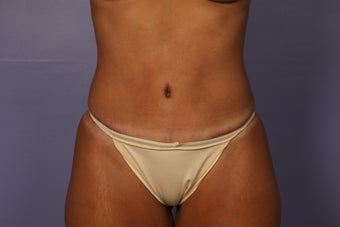 Tummy Tuck after 687597