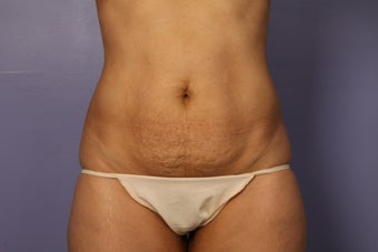 Tummy Tuck before 687597