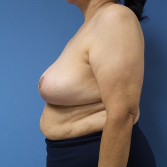 65-74 year old woman treated with Breast Reduction after 3087410