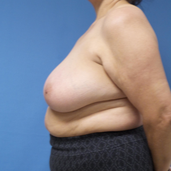 65-74 year old woman treated with Breast Reduction before 3087410