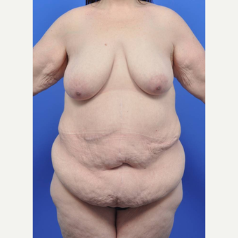 35-44 year old woman treated with Body Lift before 3455671