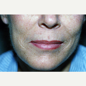 55-64 year old woman treated with Chemical Peel before 1777696