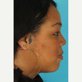 25-34 year old woman treated with Rhinoplasty after 3628942