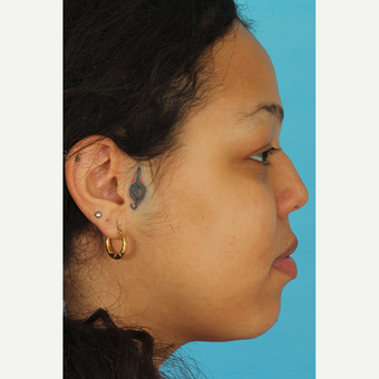 25-34 year old woman treated with Rhinoplasty before 3628942