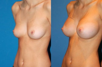 Breast Augmentation after 229356
