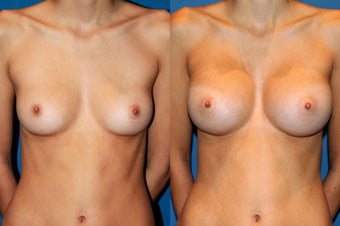 Breast Augmentation before 229356
