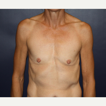 45-54 year old woman treated with Breast Augmentation before 3033508