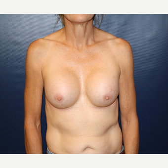 45-54 year old woman treated with Breast Augmentation after 3033508