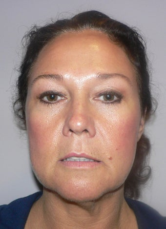 49 year old woman has Mini Facelift before 975658