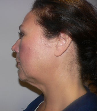 49 year old woman has Mini Facelift 975658