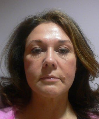 49 year old woman has Mini Facelift after 975658