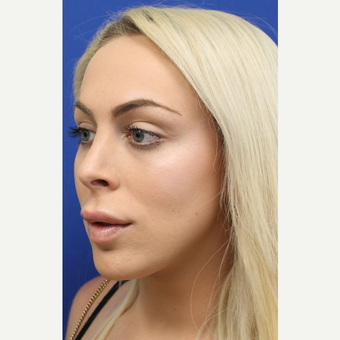 18-24 year old woman treated with Jaw Reduction after 3741927