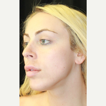 18-24 year old woman treated with Jaw Reduction before 3741927